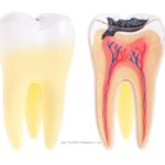 Dry Tooth Socket : { Signs, Treatment, Healing, Prevention }